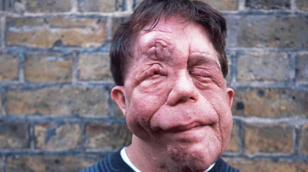 Adam Pearson. Glazer approached him to feature in the film as he was resistant to using prosthetics to show the condition.